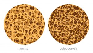 osteoporosis, vitamin D, bone health
