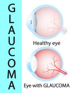 glaucoma, eye, vision, health